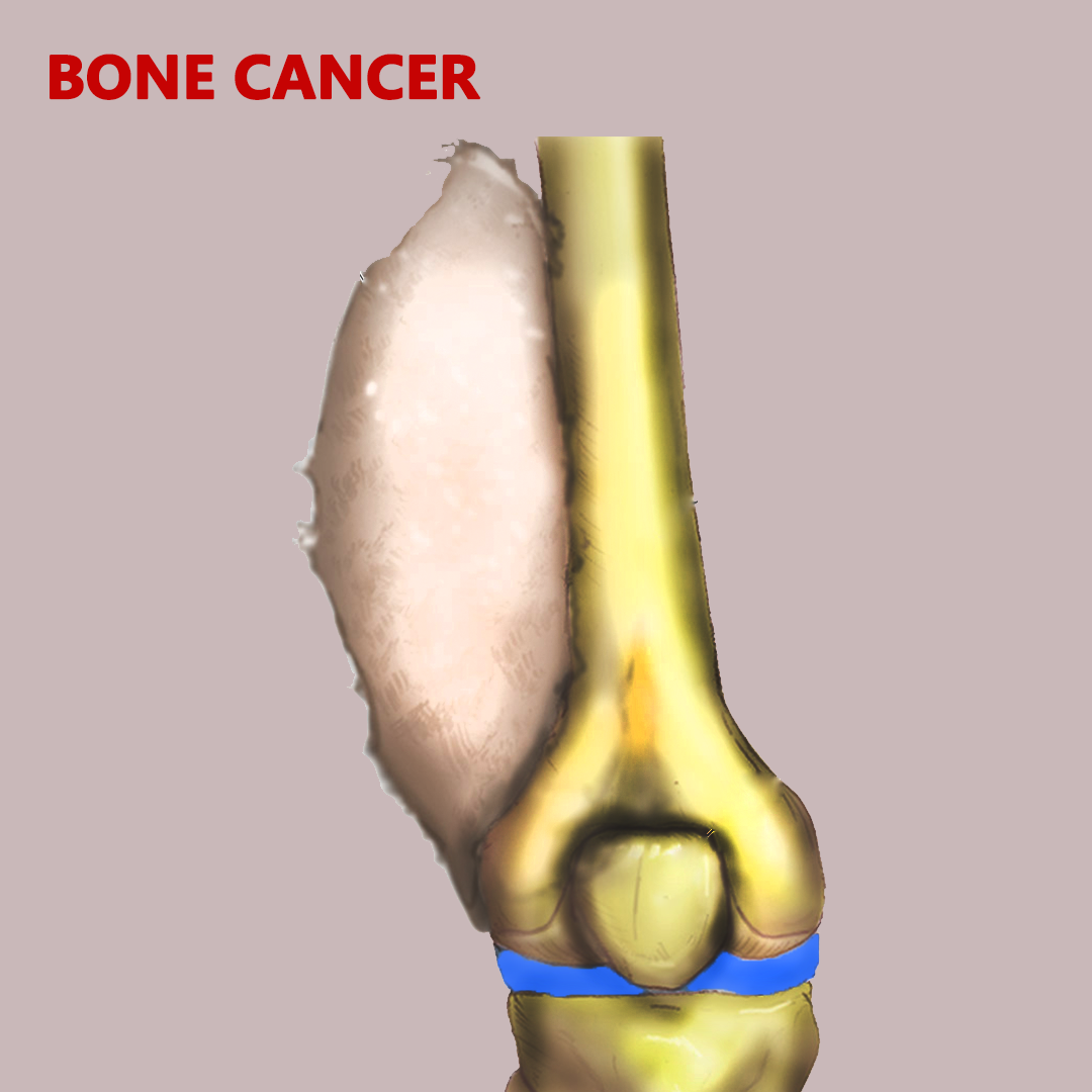 Bone Cancer Treatment in India picture