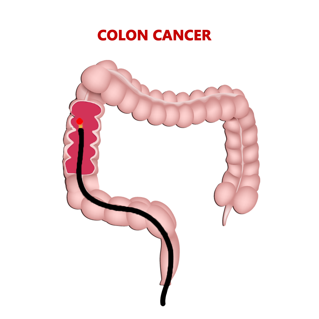 Best Cancer Hospital In India Colon Cancer Treatment In Coimbatore Tamil Nadu